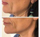 I risultati | Dr.ssa Claudia Ceccaroni - Medicina estetica