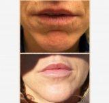 I risultati | Claudia Ceccaroni - Medicina estetica