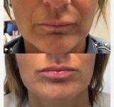 Correzione Mento e Labbra con Acido Ialuronico - Dottoressa Claudia Ceccaro
