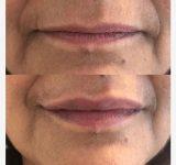 Filler Labbra con Acido Ialuronico - Dottoressa Claudia Ceccaroni